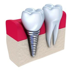 dental-implant-2-300x292