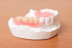 partial-denture-300x199