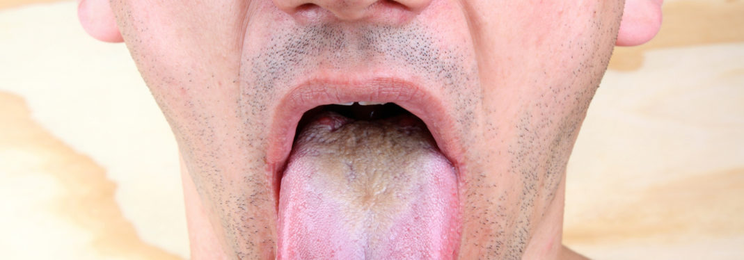 Study Finds New Way To Treat Thrush