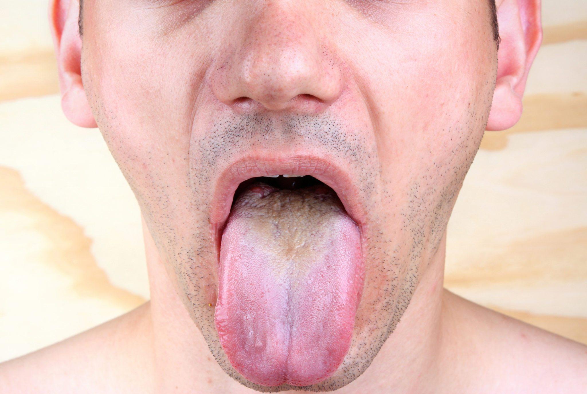 Study Finds New Way To Treat Thrush Barrett Family Dental