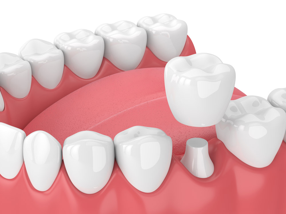 dental crown simulation