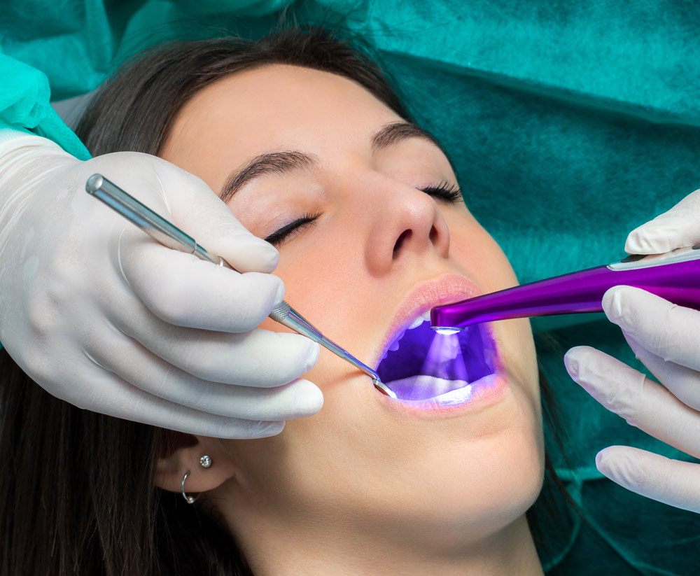 dentist sealing patient in Hillsboro, OR