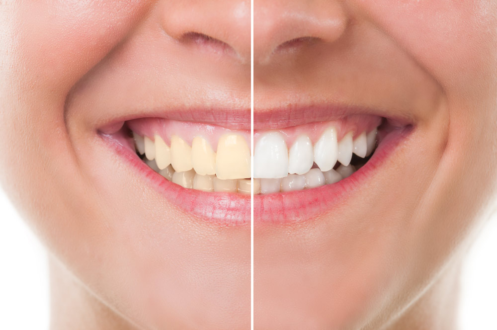 before and after tooth whitening in Tanasbourne